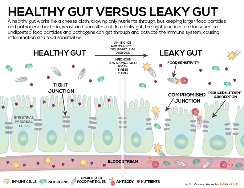 HealthyLeakyGut